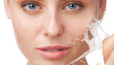 Sau khi peel da xong có nên đắp mặt nạ không?