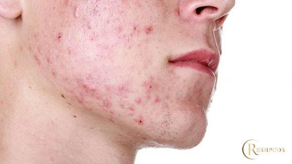Cách nhận biết và chữa da mặt bị nghiện Corticoid, tác hại Corticoid